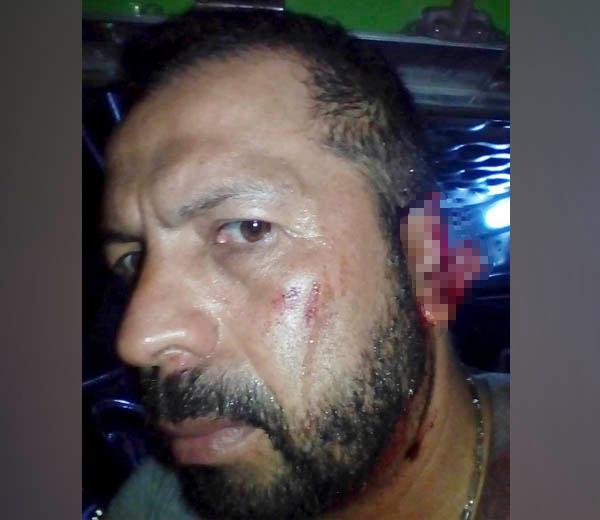 conductor agredido en intento de atraco Cesár